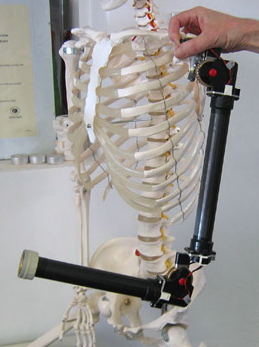 Edinburgh Modular Arm System